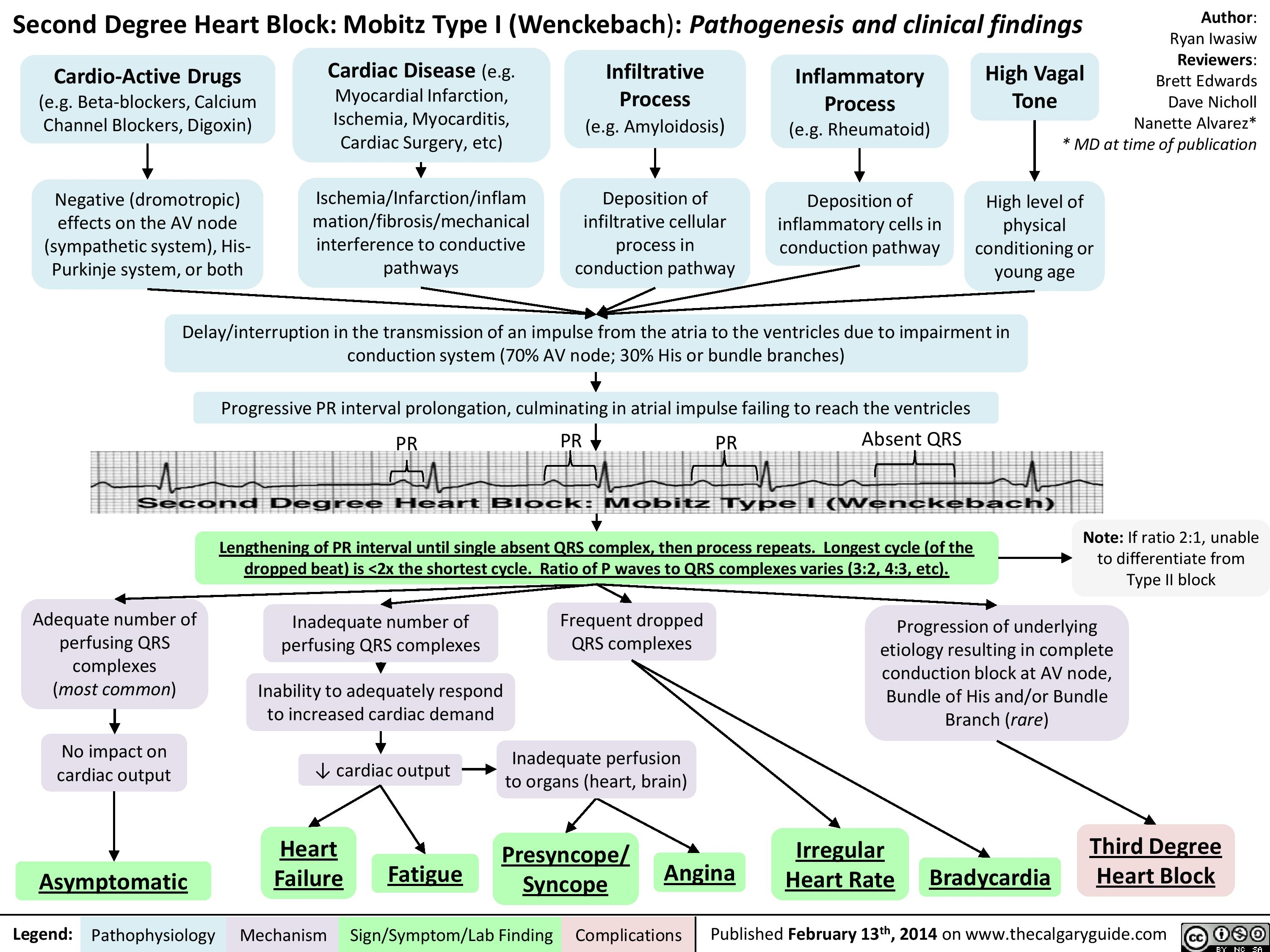 Second Degree Heart Block - Mobitz Type I (Wenckebach) -      Pathogenesis and Clinical Findings