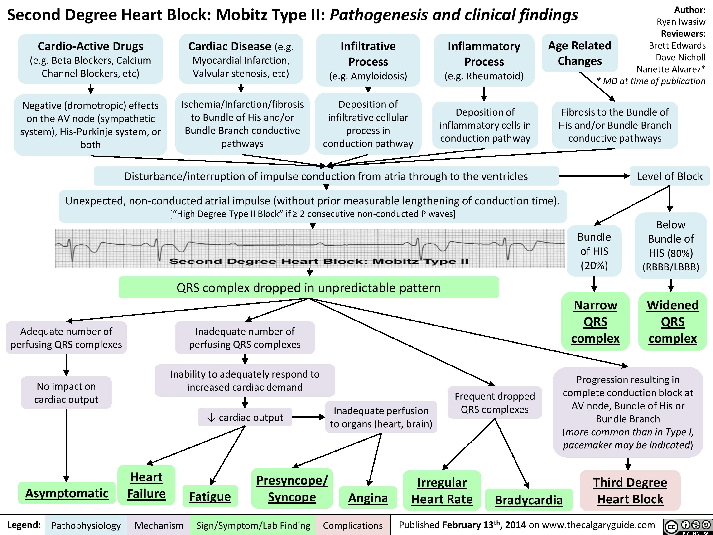 Second Degree Heart Block - Mobitz Type II - Pathogenesis      and clinical findings